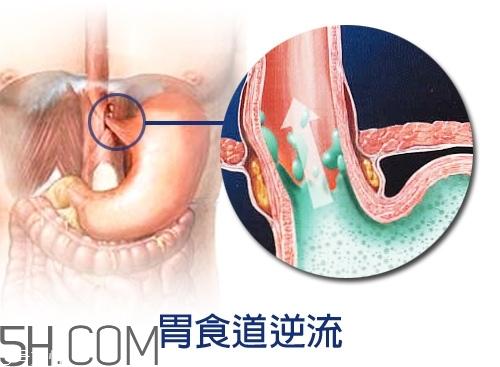 胃食道逆流怎么办 质子泵抑制剂风险高