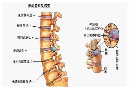 中医教你推拿有效治疗缓解腰椎疼痛