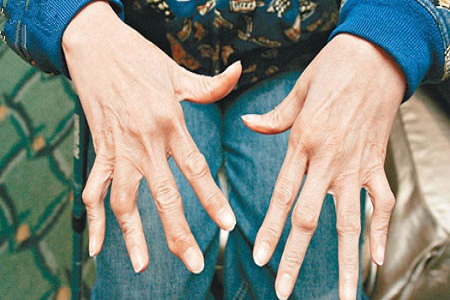 中医治疗风湿病的基本常识需知晓