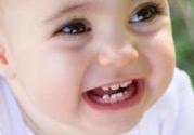 宝宝有奶瓶齿的原因是什么怎么治疗