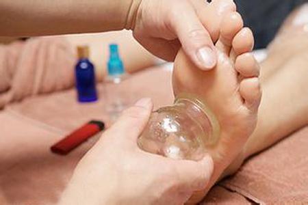 脚底拔火罐能有效调节血压促进睡眠