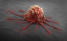 预防癌症的食物有哪些 抗癌的十大食物