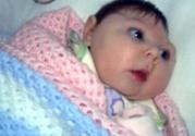寨卡病毒对胎儿有什么影响如何感染孕妇