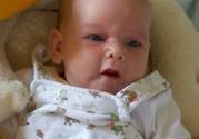 宝宝满月后还有黄疸这样正常吗
