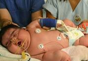 孕妇患糖尿病生巨婴 巨大儿有什么危害