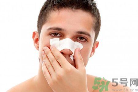 鼻子出血怎么回事?鼻子出血如何快速止血?