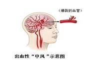 脑中风的发病因素?脑中风的并发症有哪些 ?