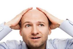 男人秃顶能治好吗??治疗秃顶小偏方