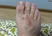 手足癣会传染吗?手足癣的传播途径有哪些?