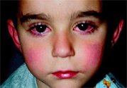 宝宝为什么会感染红眼病?宝宝患红眼病如何治疗?