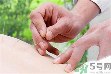 针灸时头晕胸闷是什么?原因?针灸晕针怎么办??