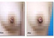 乳头内陷怎么矫正?乳头内陷矫正方法