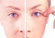 女人开始衰老的症状是什么?女性衰老的原因有哪些?
