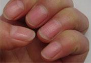 孩子手指甲凹凸不平是什么原因?手指甲凹凸不平的原因是什么?