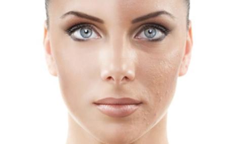 激光除皱会留疤吗 激光除皱有副作用吗
