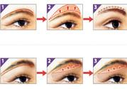 提眉术后多久可以恢复?提眉术后全过程照片