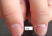 手指月牙怎么补回来?手指月牙少怎么调理?