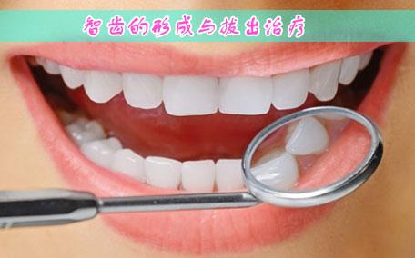 智齿发炎怎么快速消炎 三个方法来消炎