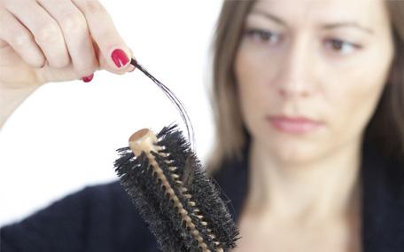 慢性脂溢性脱发怎么护理 慢性脂溢性脱发怎么预防