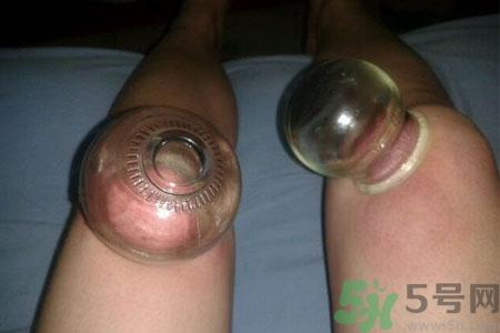 膝盖能拔罐吗??膝盖疼可以拔罐吗??