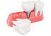 牙缝大怎么回事?牙缝大怎么矫正