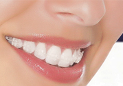隐形牙套矫正多少钱?隐形牙套多少钱一副?