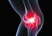 冬天膝盖疼是怎么回事?冬天膝盖疼怎么办?
