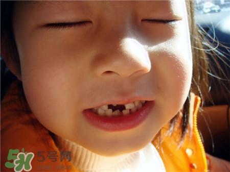 孩子换牙乳牙不掉怎么办?换牙可以拔掉吗?