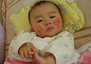 新生儿身上有红点是怎么回事?是什