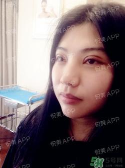 切开双眼皮消肿过程图 切开双眼皮恢复过程图