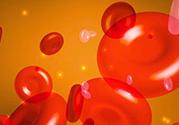 胆固醇高是血脂稠吗?胆固醇高和血脂稠有什么联系?