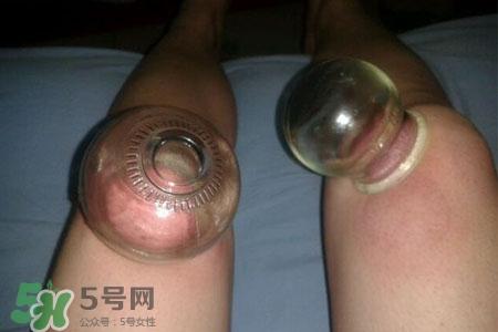 腿部减肥拔罐位置图片