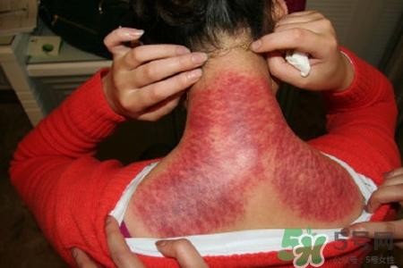 刮痧可以治颈椎病吗??刮痧能治疗颈椎病吗??