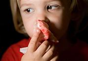 一哭就流鼻血是怎么回事 流鼻血是什么原因