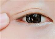 眼睛浮肿是什么原因 早起眼睛浮肿是什么原因