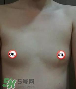假体隆胸取出后悔死了 假体隆胸取出后图片