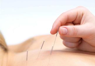 针灸可以治疗风湿吗?针灸治风湿性关节炎效果好吗?