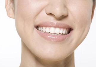 洗牙可以去除口臭吗?洗牙能去除口臭吗?