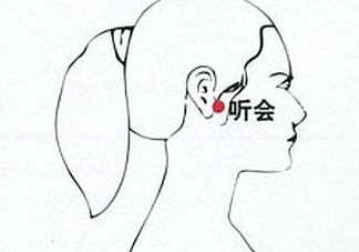 艾灸治疗耳鸣操作方法 艾灸治疗耳鸣视频