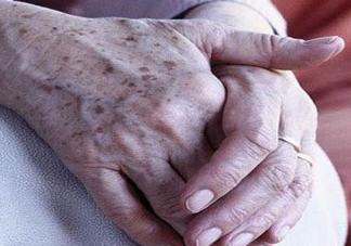 老年斑多大年龄开始有?为什么牙膏能去老年斑?