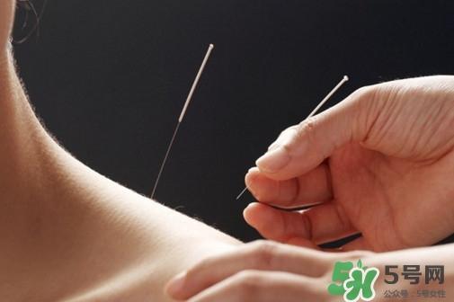 针灸能治疗哪些病?古代针灸用具是几针