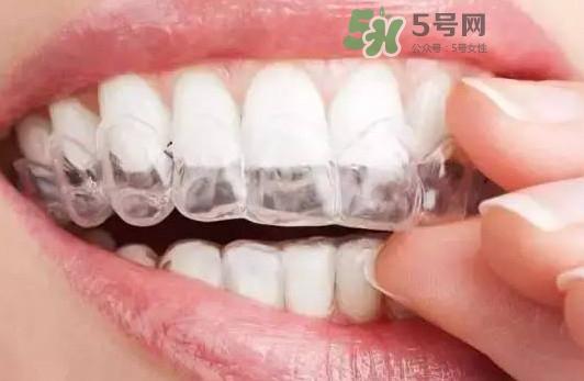牙齿有缝隙可以补吗?牙齿缝隙大能补吗