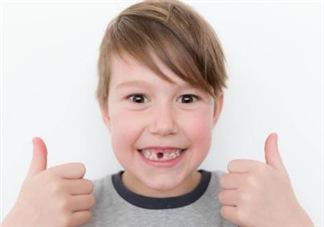乳牙龋齿要不要补?乳牙龋齿怎么办?