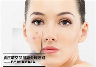油痘敏感肌护理思路及适合的护肤品