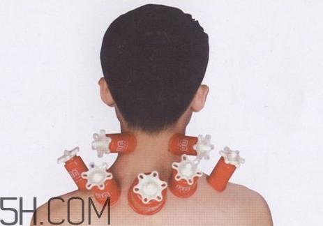 脖子可以刮痧吗??脖子拔火罐有什么好处