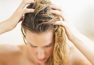 头发油怎么办?头皮屑很多怎么去除?