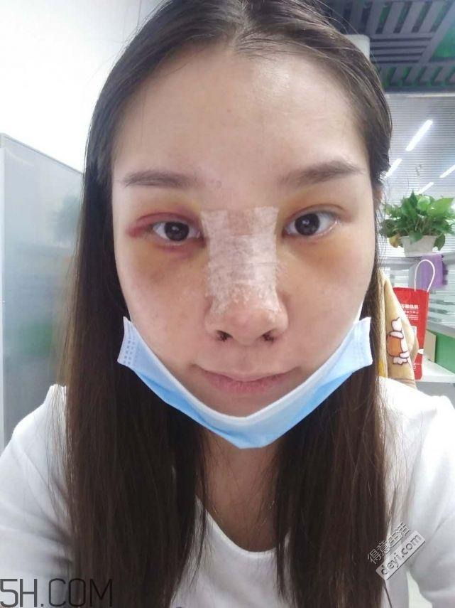 鼻头缩小术过程图 鼻头缩小手术千万别做后悔死