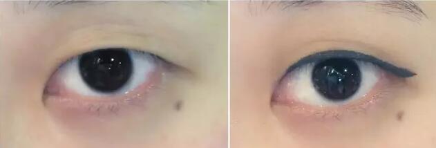 肿眼泡割双眼皮失败图图片