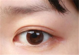 双眼皮贴的正确贴法图 适合手残党的双眼皮贴教程