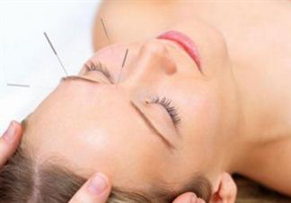 冬季最有效瘦脸方法 针灸可以瘦脸吗